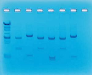 Usage of Restriction Enzymes in DNA Fingerprinting Analysis