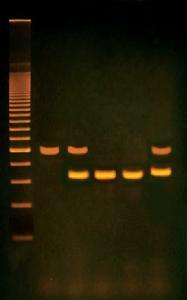 PCR Based Alu Human DNA Typing