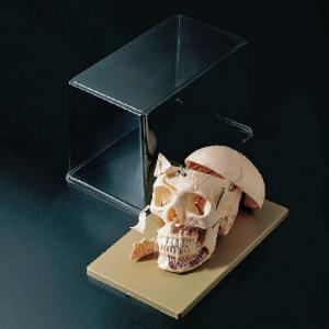 Somso® Advanced Demonstration Skull