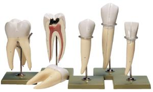 Somso® Teeth Model Set