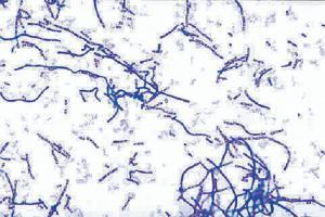 Bacillus anthracis, Gram (+) Slide