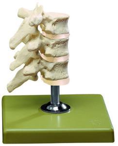Model three dorsal vertebrae-sp