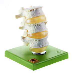 Model three lumbar vertebrae-sp