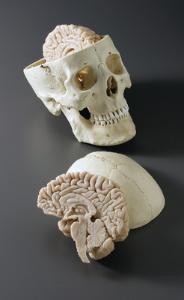 BoneClones® Skull with Brain