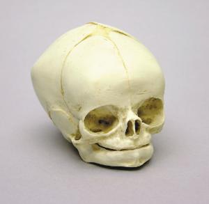 BoneClones® Fetal Skull