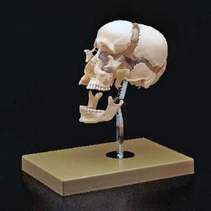 Somso® Beauchene Skull