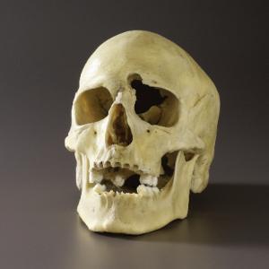 Plastic Skull with Gunshot Wound