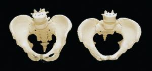 3B Scientific® Pelvic Skeleton  Models