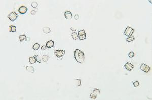 Recent Marine Diatoms Slide