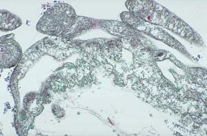 Physarum polycephalum, Plasmodium Slide