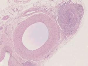 Artery, Vein, & Capillary