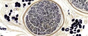 Nervous Tissue, Peripheral Nerve Slide