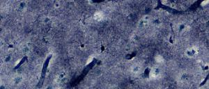 Astrocytes, Cajals gold