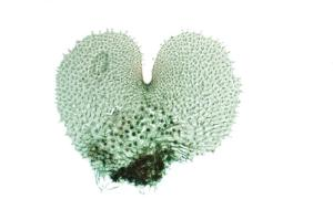 Fern, Antheridia & Archegonia Prothallia
