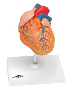 3B Scientific® Heart With Left Ventricular Hypertrophy (LVH)