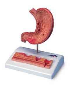 3B Scientific® Stomach With Ulcers