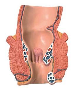 3B Scientific® Hemorrhoid Model