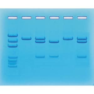 Nucleic acid detection for COVID-19