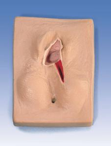 Life/form® Episiotomy Suture Set