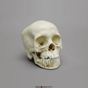 Human Child Skull 12-year-old, Dentition Exposed