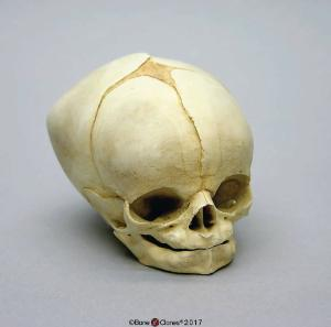 Human Fetal Skull 40 1/2 Weeks (Full Term)