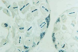 Crayfish Mitosis/Meiosis
