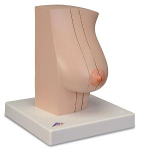 3B Scientific® Model Of The Femalebreast