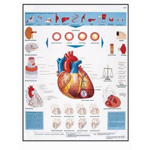 3B Scientific® Infarction Chart