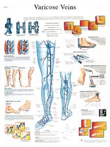 3B Scientific® Varicose Veins Chart