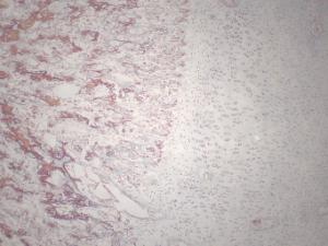 Osteogenesis, Endochondral Ossification Slide