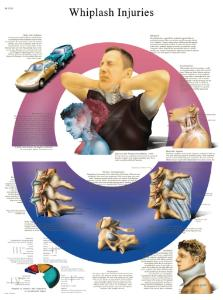 3B Scientific® Whiplash Chart