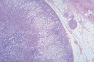 Adrenal Gland (Mammal)