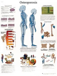 3B Scientific® Osteoporosis Chart