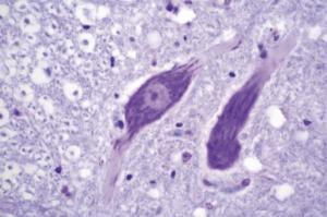 Ribosomes, Nissl Bodies Slide