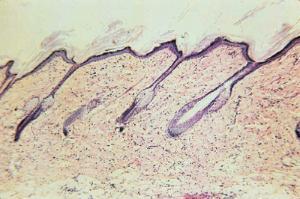 Skin of Hairy Mammal Slide
