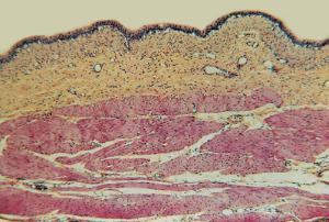 Urinary Bladder, Distended Slide