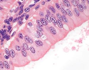 Urethra, Male Slide