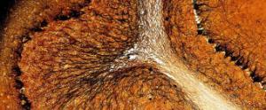 Cerebellum & Choroid Plexus Slide