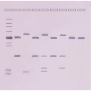 DNA fingerprinting by southern blot