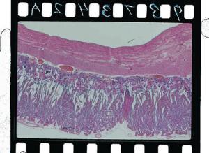 Placenta Slide