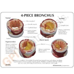 GPI Anatomicals® Basic Bronchus Model