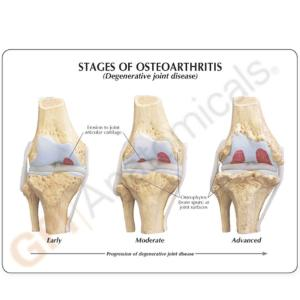 GPI Anatomicals® Stages of Osteoarthritis Knee Model