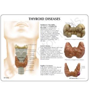 GPI Anatomicals® Thyroid Model