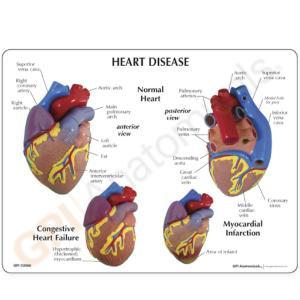 GPI Anatomicals® Heart Disease  Model Set