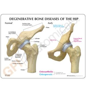 GPI Anatomicals® Arthritic Hip Model
