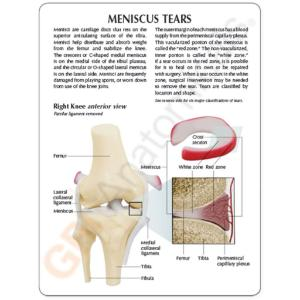 GPI Anatomicals® Meniscus Knee
