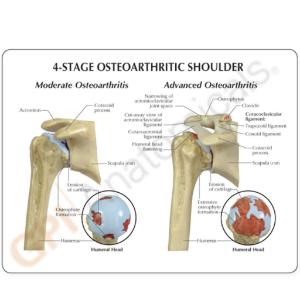 GPI Anatomicals® Osteoarthritis Stages