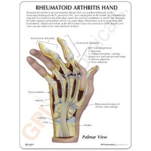 GPI Anatomicals® Rhumatoid Arthritis Hand