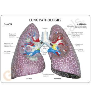 GPI Anatomicals® Lung Set with pathologies