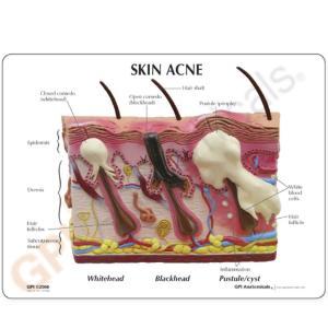 GPI Anatomicals® Skin Normal/Acne